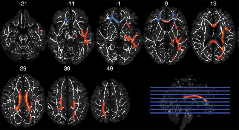 Football position and length of play affect brain impact