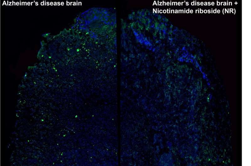 Healthy mitochondria could stop Alzheimer's