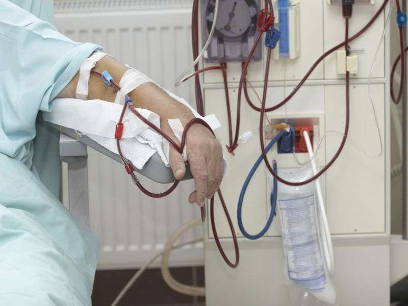 Initiation of renal replacement therapy impacts HRQoL