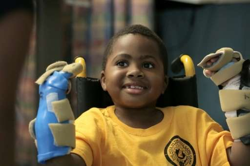 In this undated handout photo provided by the Children's Hospital of Philadelphia in Pennsylvania, 8-year-old Zion Harvey of Bal
