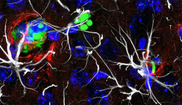 Limiting lung cancer's spread and growth in the brain