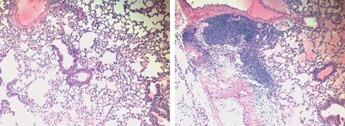 Macrophages need two signals to begin healing process