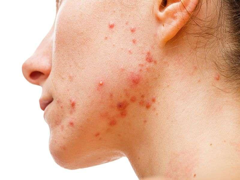 Mask with myoinositol/Trehalose aids adult female acne