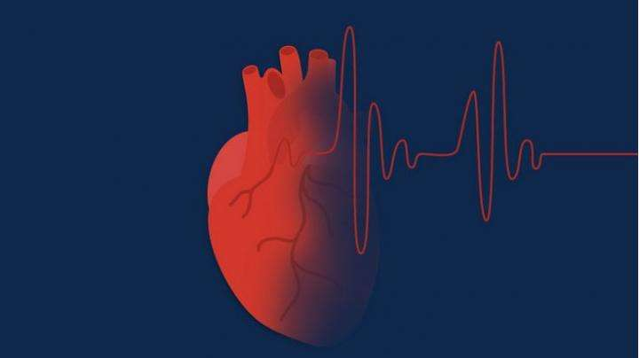 Medication adherence a problem in atrial fibrillation patients