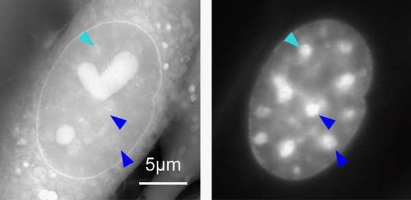 Microscope invented at marine biological laboratory illuminates chromosomal 'dark matter'