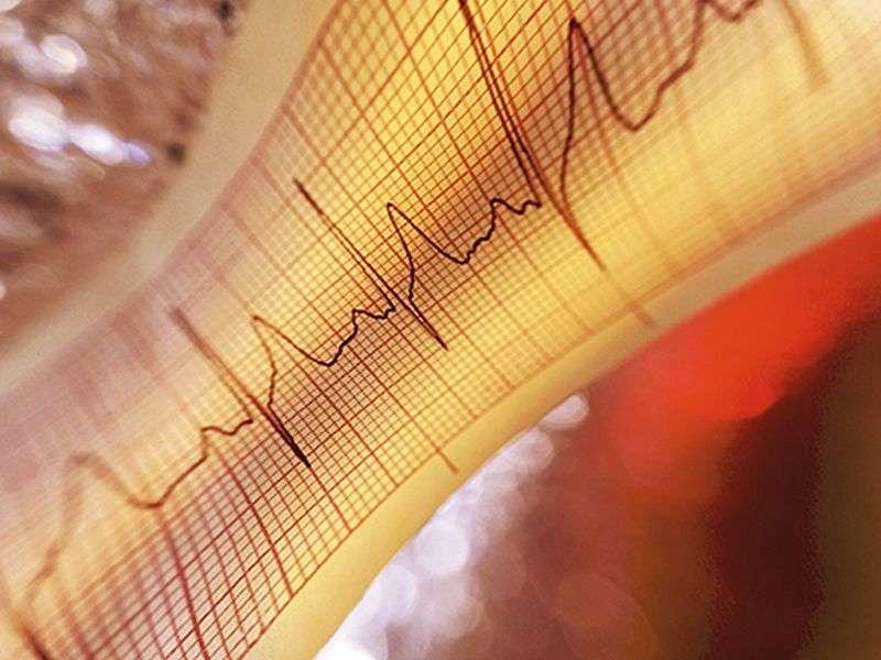Molecular autopsy IDs causes of sudden arrhythmic death