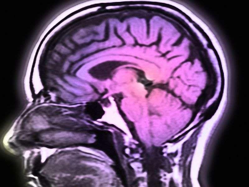 NAFLD linked to smaller total cerebral brain volume