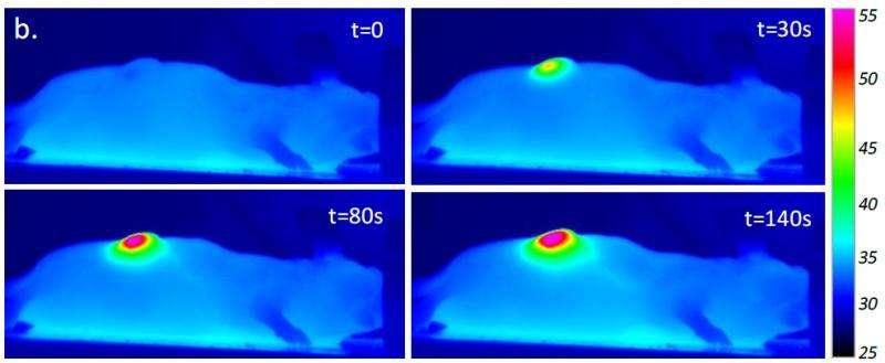 Nanohyperthermia softens tumors to improve treatment