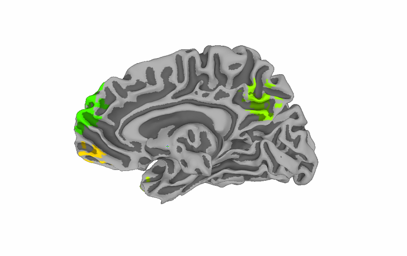 Neuroimaging technology reveals why we choose sustainable products
