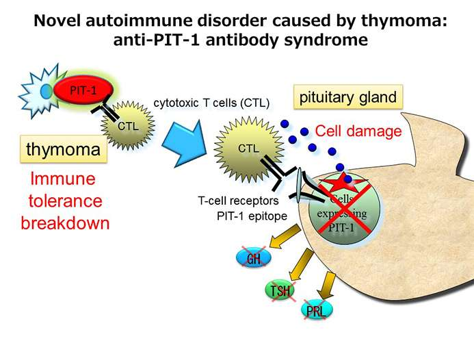 New autoimmune disease triggered by thymomas