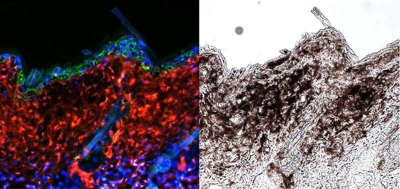 New findings explain how UV rays trigger skin cancer