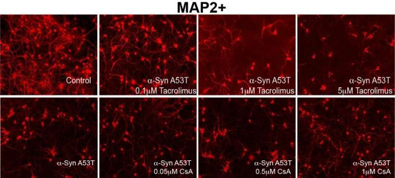 New findings point to potential therapy for Parkinson's Disease