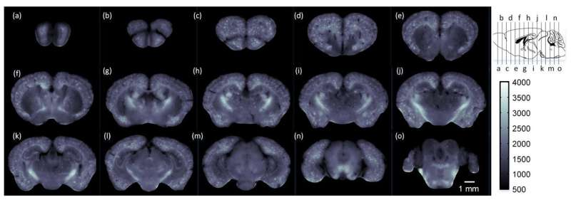 New imaging approach maps whole-brain changes from Alzheimer's disease in mice