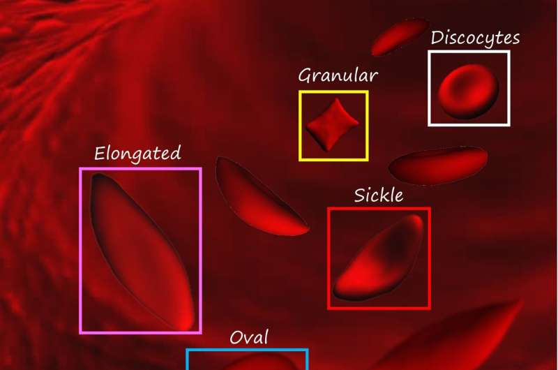 New machine learning system can automatically identify shapes of red blood cells