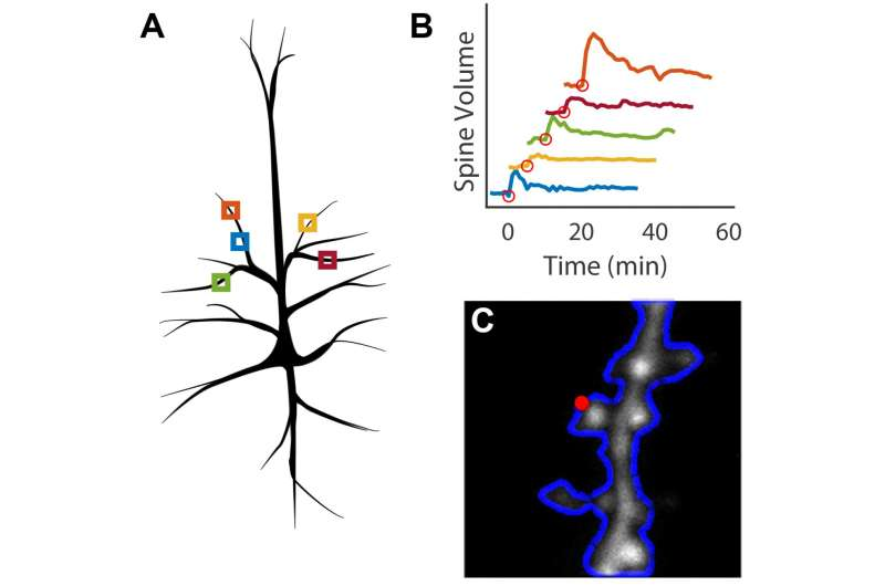 New software automates brain imaging