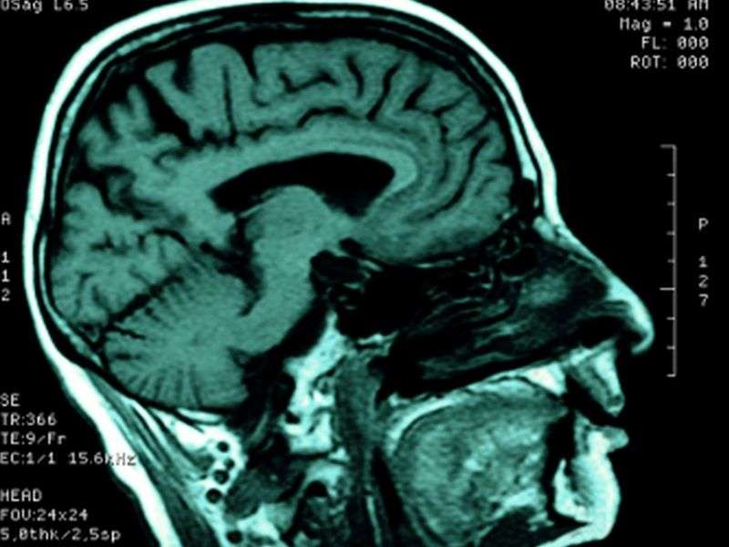 No cognitive benefit for long-term lifestyle intervention