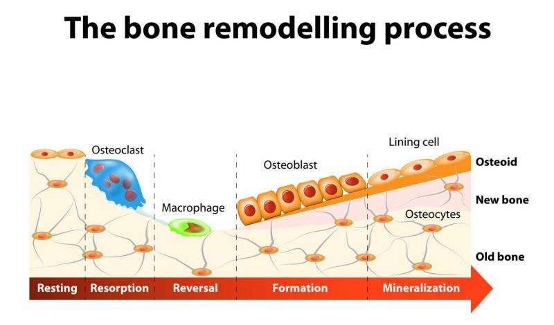 Non-coding RNA molecule could play a role in osteoporosis