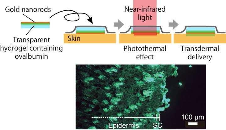 Novel thermal ablation system for transdermal drug delivery