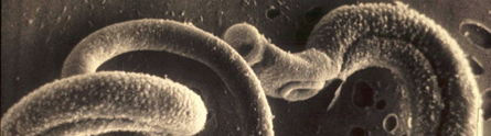Parasites clue to why allergies are more common in developed countries