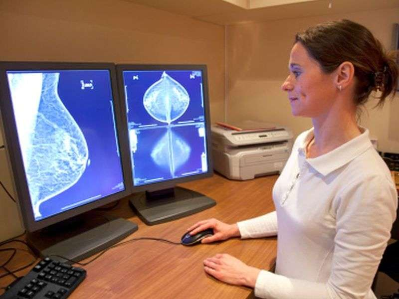 Perceived breast density may affect single read suitability