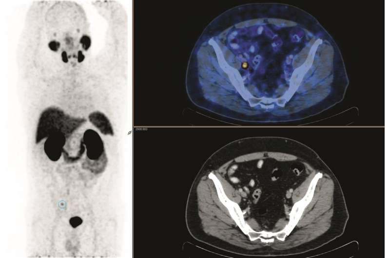 PET identifies which prostate cancer patients can benefit from salvage radiation treatment
