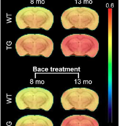 PET tracer gauges effectiveness of promising Alzheimer's treatment