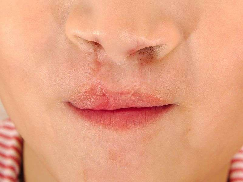 Primary care pediatrician vital for cleft lip/Palate care