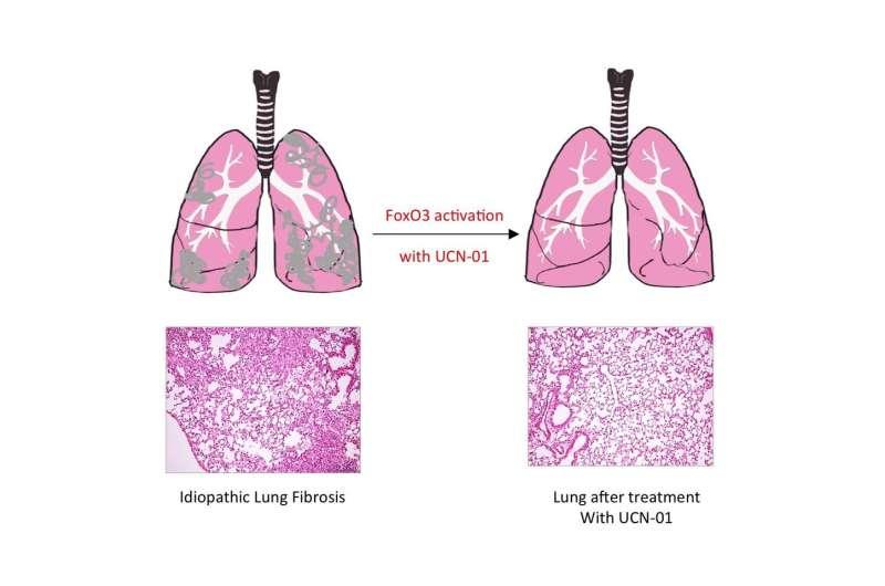 Pulmonary fibrosis caused by single transcription factor