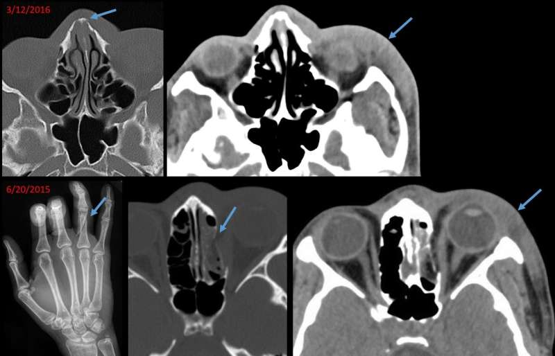 Radiology offers clues in cases of domestic abuse and sexual assault