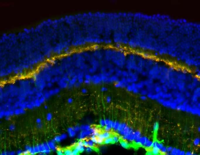 Retina may be sensitive gauge of blast-wave pressure injury