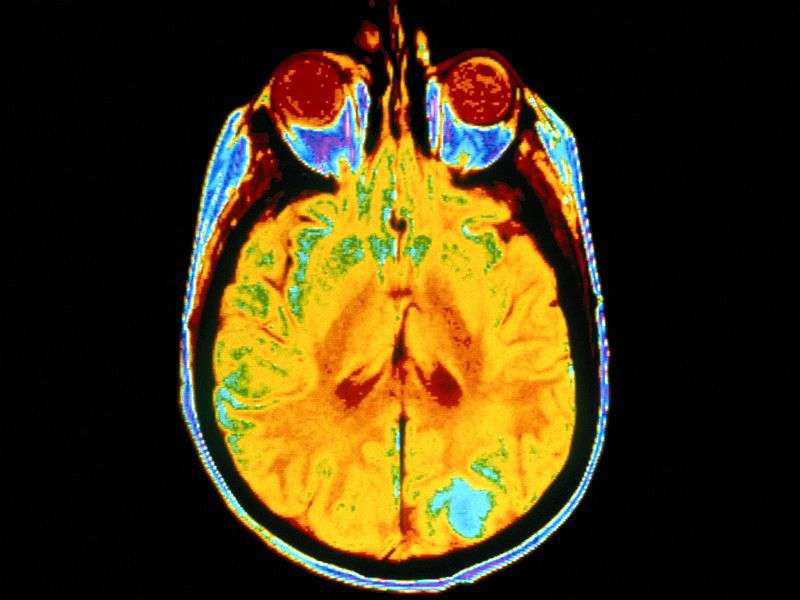 Review links albuminuria to cognitive impairment, dementia