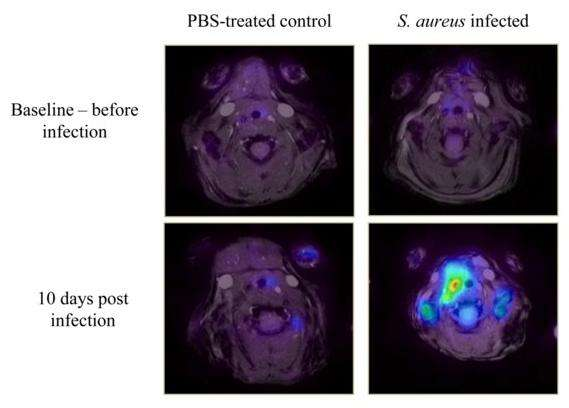 Scientists pave the way for enhanced detection and treatment of vascular graft infections