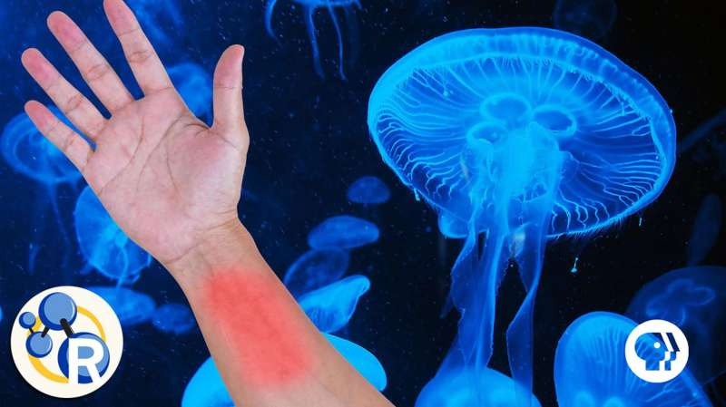 Should you pee on a jellyfish sting? (video)