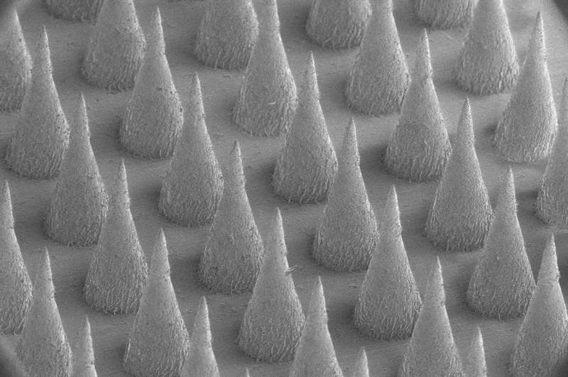 Smart artificial beta cells could lead to new diabetes treatment