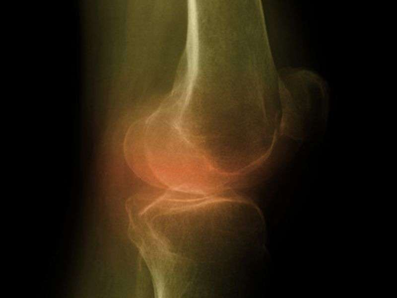 Some benefit for curcuminoids in knee osteoarthritis