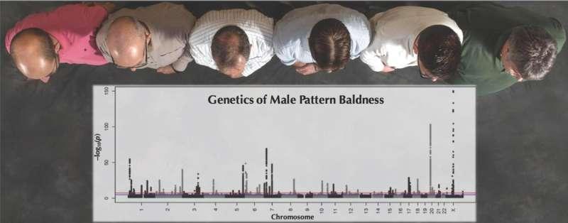 Study of 52,000 men uncovers the genetics underlying male pattern baldness
