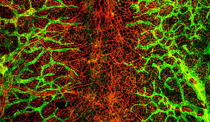 Study of blood vessel growth may open new pathway to therapies