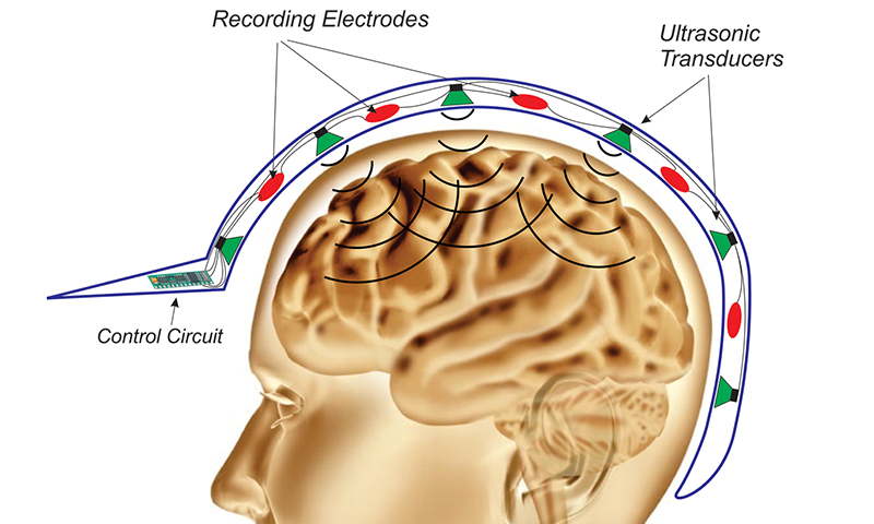 Suppressing epileptic seizures via Anderson localization