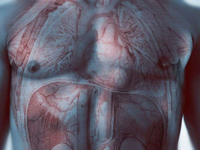 Target-vessel failure rate similar for scaffold, stent in PCI