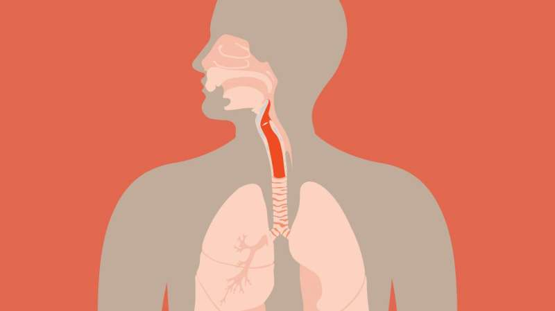The best treatment for laryngeal cancer? This approach helps decide