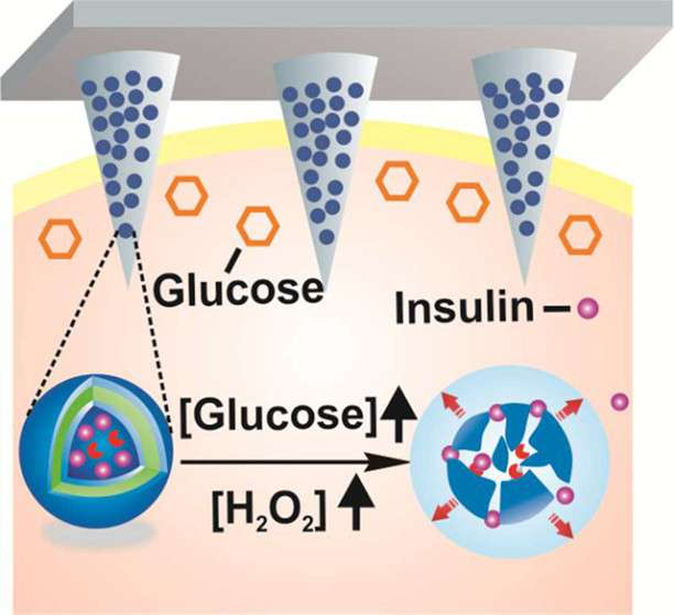 Toward a 'smart' patch that automatically delivers insulin when needed