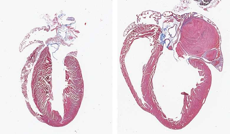 UIowa study examines altered gene expression in heart failure