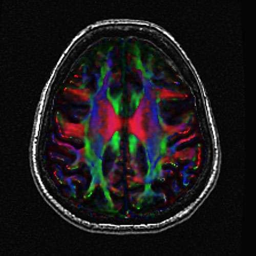 UMD exercise study offers hope in fight against Alzheimer's