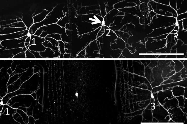 Using light to make single cells self-destruct