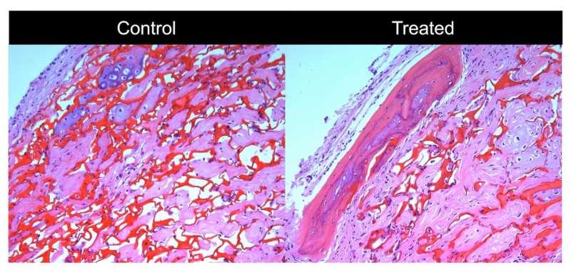 UW scientists find key cues to regulate bone-building cells