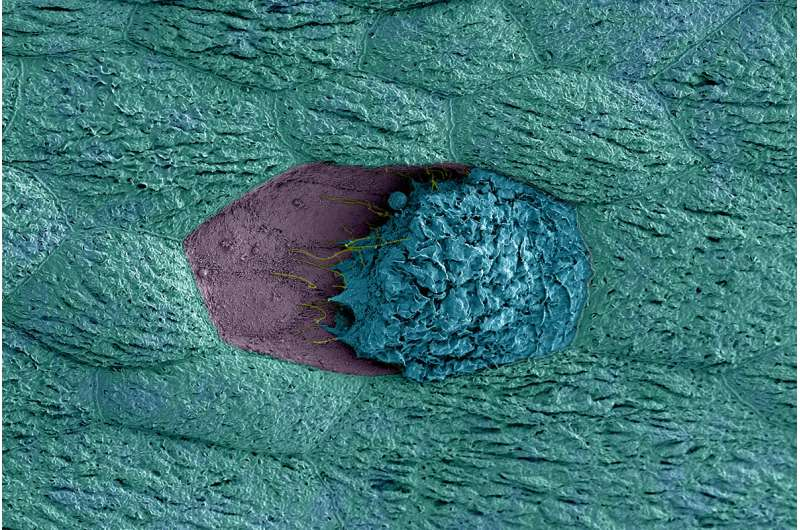 Vaginal bacteria can trigger recurrent UTIs, study shows