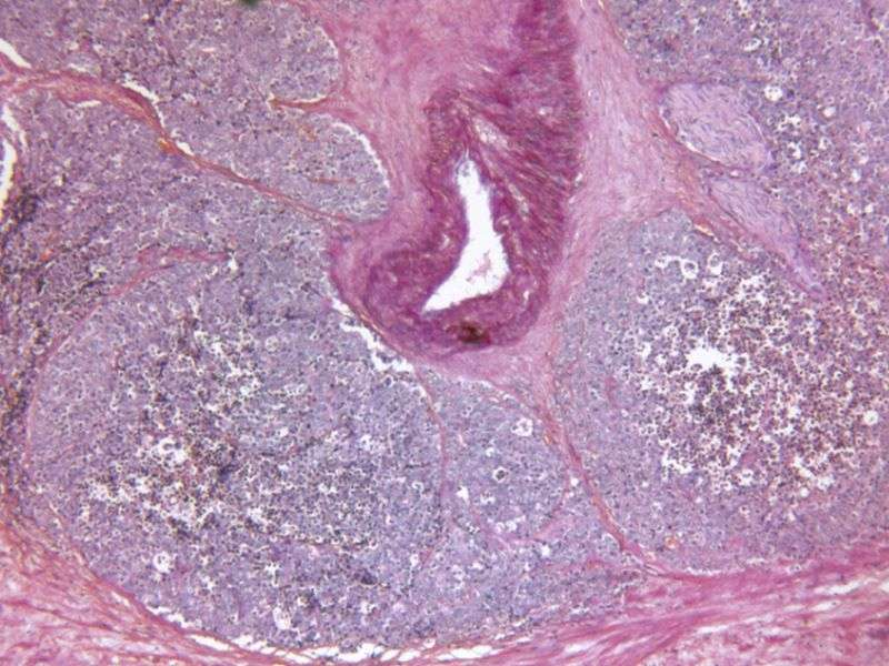 Vascular targeted photodynamic tx aids low-risk prostate cancer