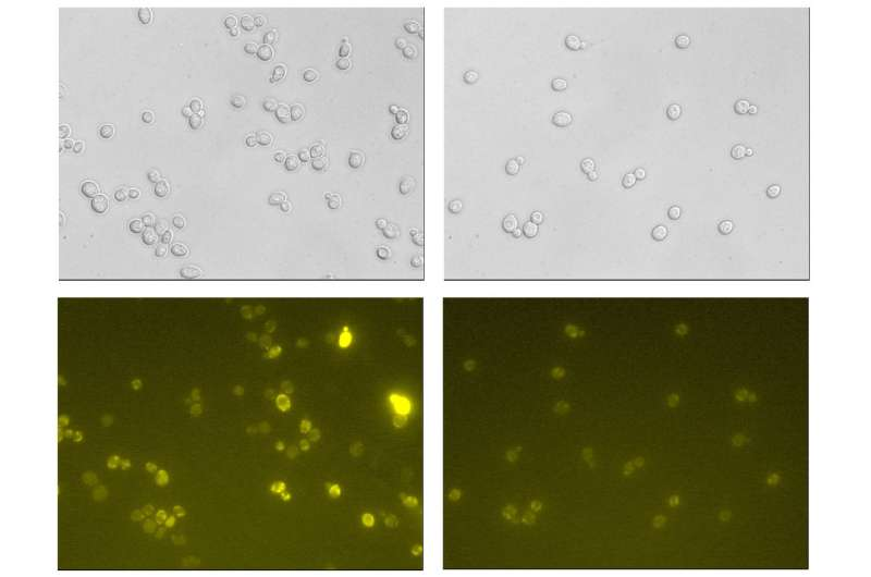Yeast can be engineered to create protein pharmaceuticals