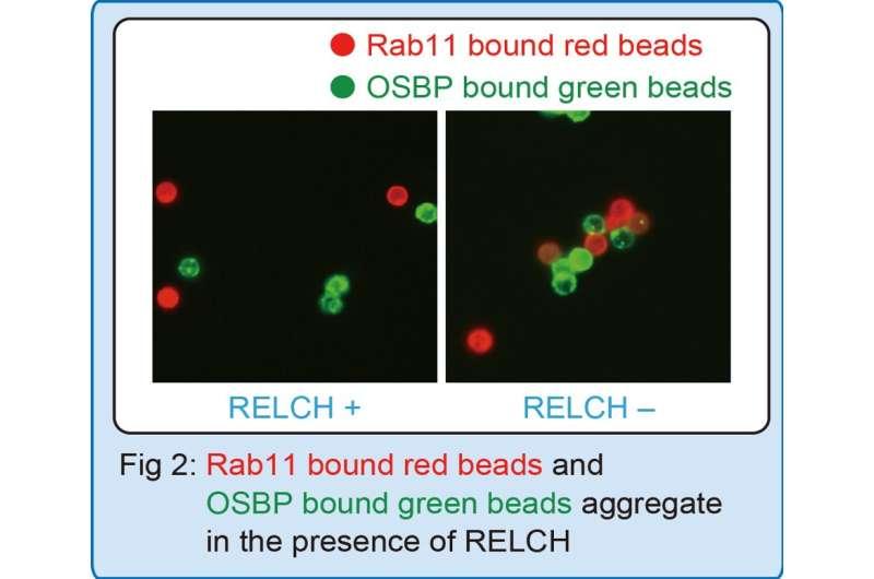 Cholesterol leash: Key tethering protein found to transport cellular cholesterol