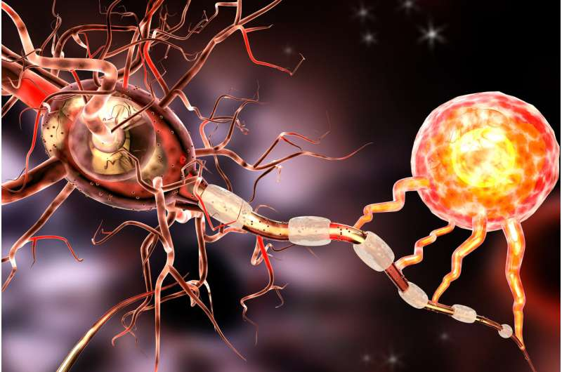 Discovery presents treatment hope for Alzheimer's and other neurodegenerative diseases